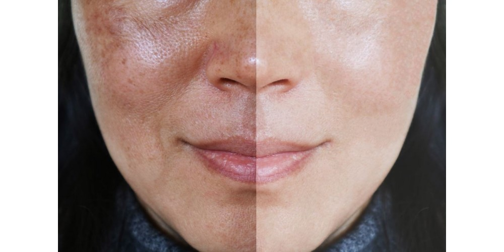 Hyperpigmentation - Qu'est-ce que l'hyperpigmentation ?